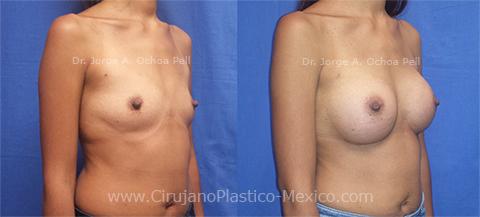final-chica-implantes