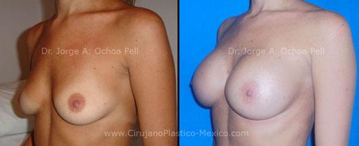 implantes subglandulares 1