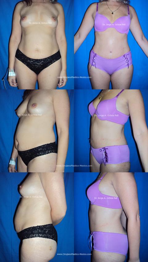 abdominoplastia 1 sitio