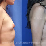 implantes-1-final-480