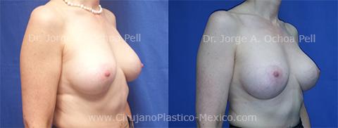 cambio-de-implantes-chica