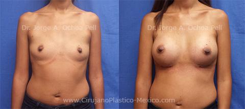 final-chica-implantes-2