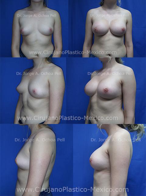 implantes-de-mama-2